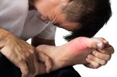 Goutte : l'acide urique bas protège de la crise douloureuse