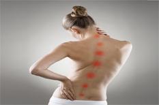 Lombalgie aiguë : soulager le mal de dos et maintenir une activité