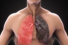 Cancer du poumon : les progrès du traitement sont constants
