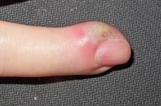 Panaris : une infection du doigt à désinfecter sans tarder