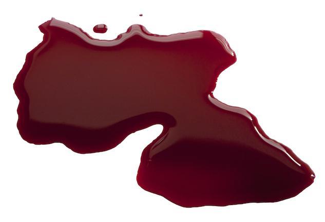 Anticoagulants : éviter la thrombose sans trop de risque hémorragique