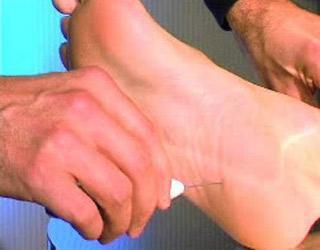 L'examen du pied au monofilament